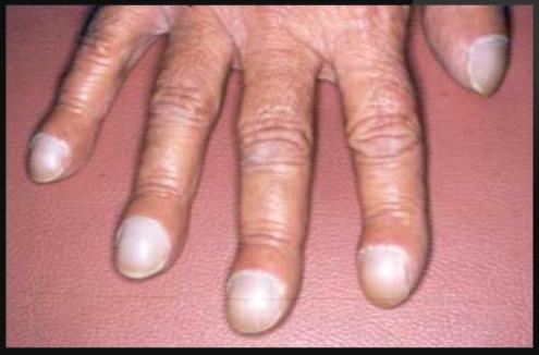 Изменение формы ногтя на ногах