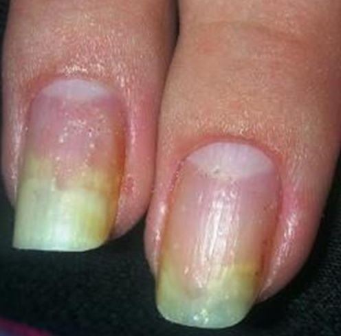 Онихомикозы ногтей рук